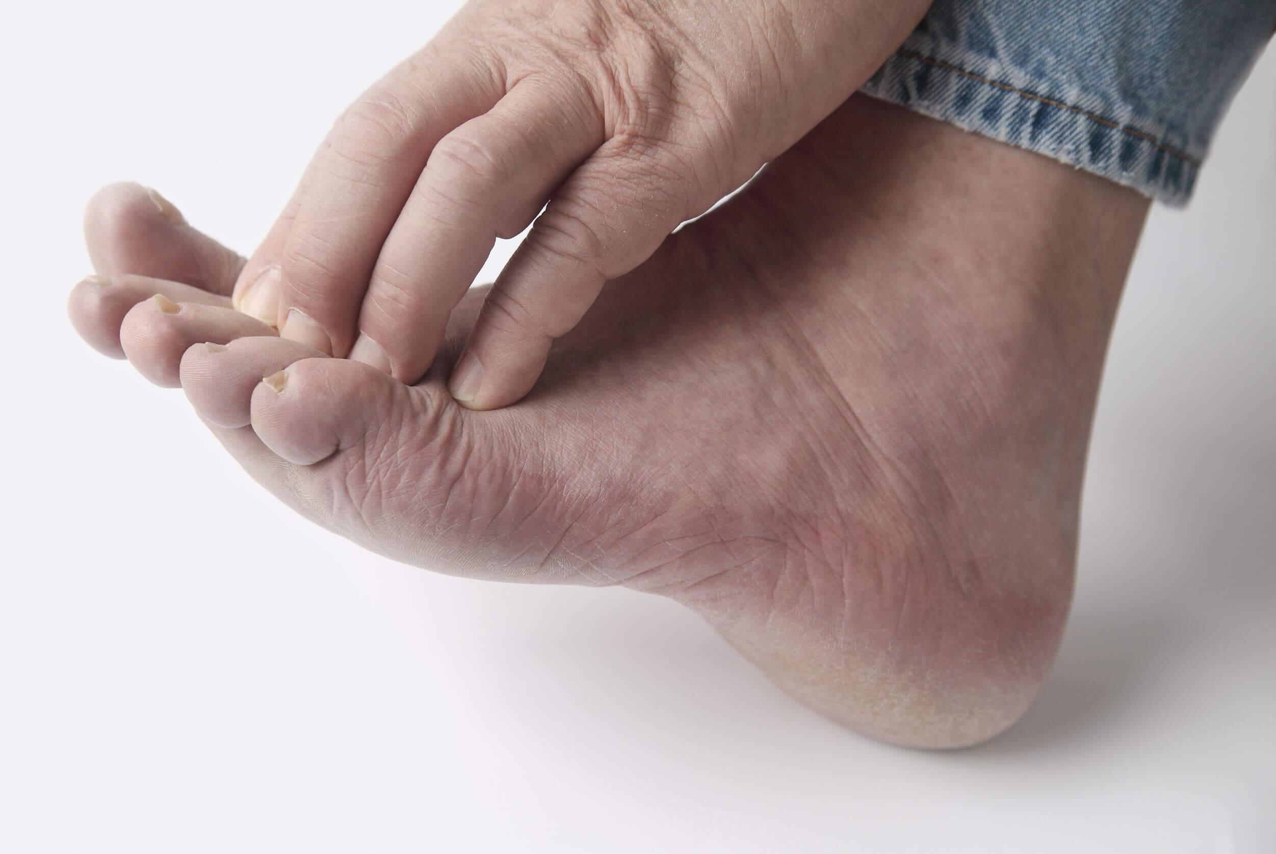 מטרד גדול בכף רגל אחת.פטרת כפות רגליים – כל מה שצריך לדעת