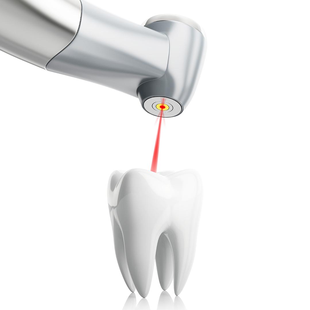 כדאי להכיר: לייזר ארביום בטיפולי שיניים – בראשון לציון
