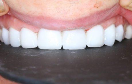 זה הזמן להתייעץ עם רופא שיניים על טיפולי הלבנה